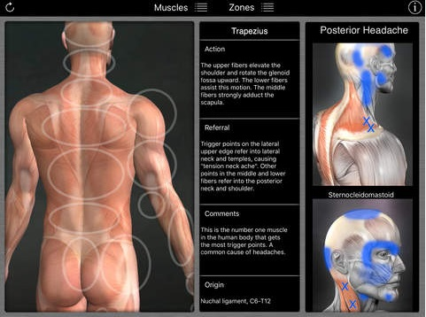 Muscle trigger points by area of pain